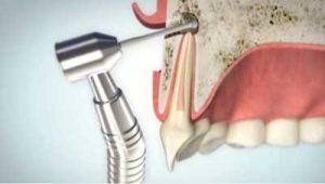 Wurzelspitzenresektion Chirurgischer Zugangsweg | groisman & laube