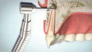 Wurzelspitzenresektion Reduktion der Wurzelspitze   groisman & laube