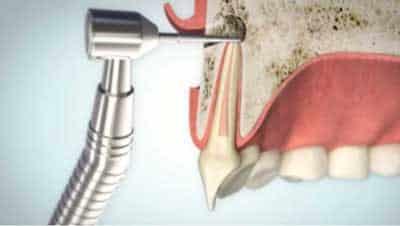 Wurzelspitzenresektion Reduktion der Wurzelspitze | groisman & laube