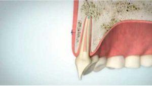 Wurzelspitzenresektion Situation nach Defektausheilung | groisman & laube