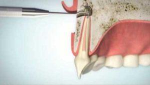 Wurzelspitzenresektion Wurzelkanalaufbereitung von der Wurzelunterseite