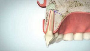 Wurzelspitzenresektion Wurzelkanalfüllung   groisman & laube