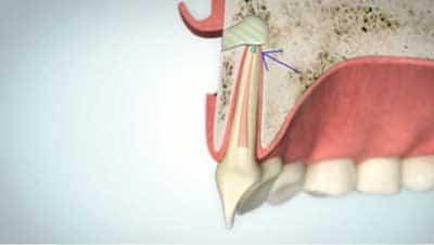 Wurzelspitzenresektion Wurzelkanalfüllung | groisman & laube