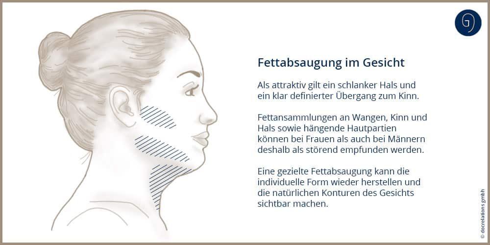 Fettabsaugung im Gesicht - Dr. Laube Frankfurt