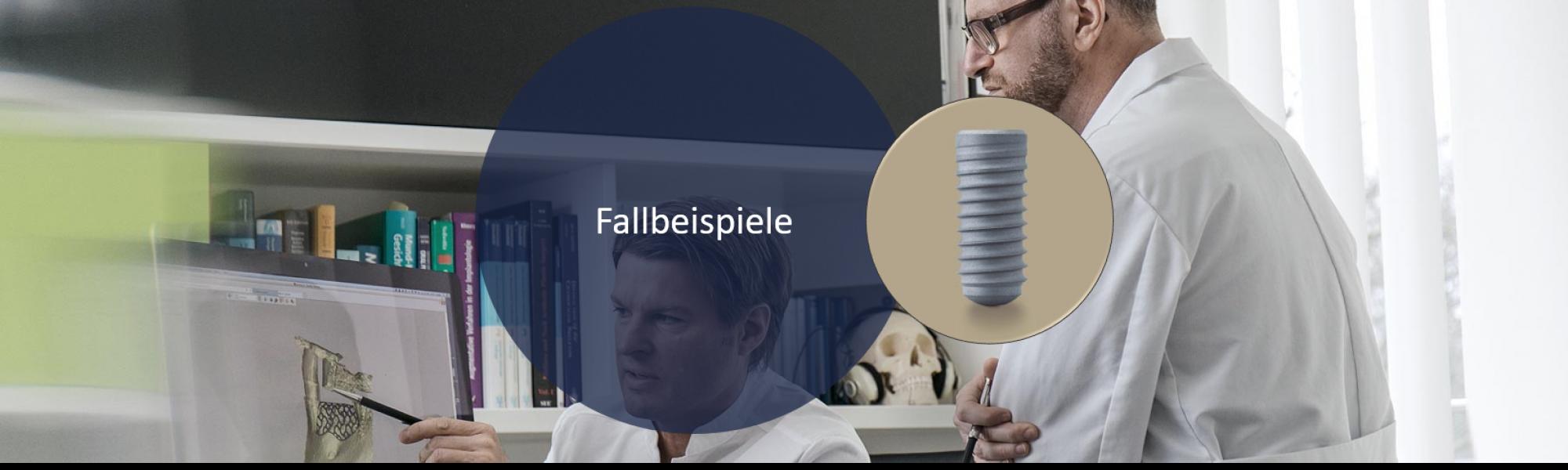 Fallbeispiele zur Implantologie von Groisman & Laube in Frankfurt