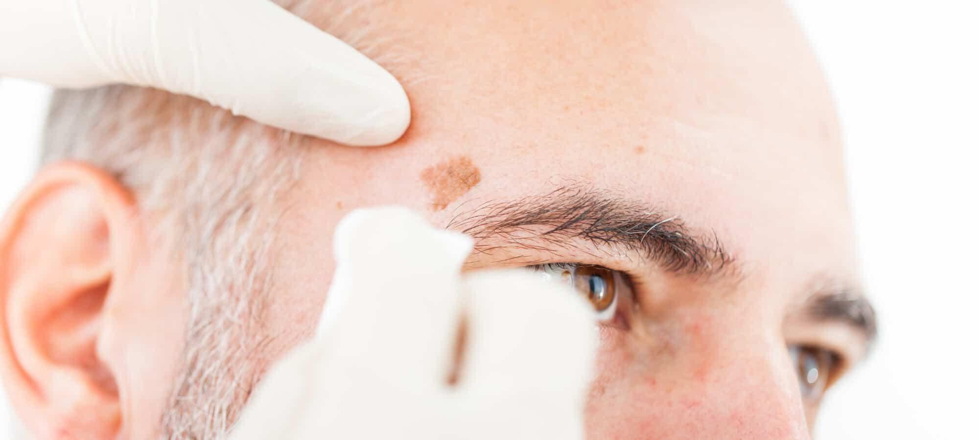 Hautkrebs im Gesicht entfernen   groisman & laube