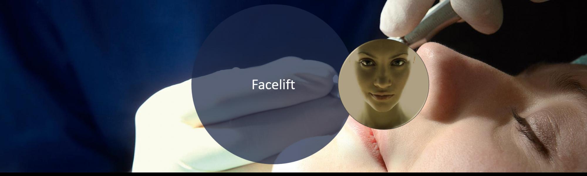 Ästhetische Gesichtschirurgie Facelift bei Groisman Laube