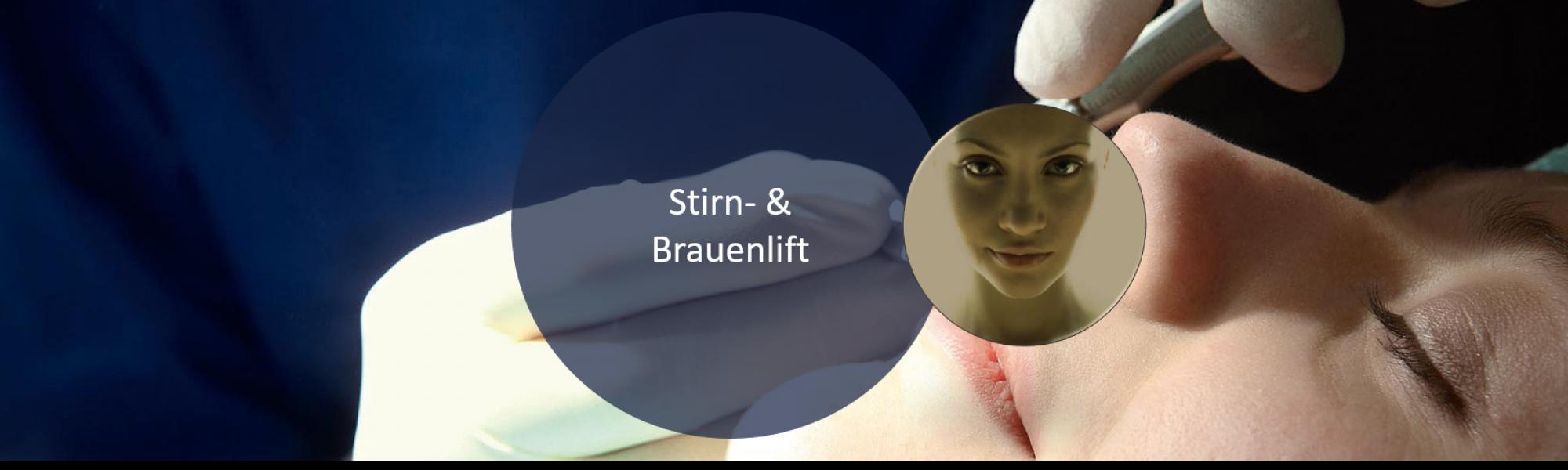 Ästhetische Gesichtschirurgie Stirn- & Brauenlift bei Groisman Laube